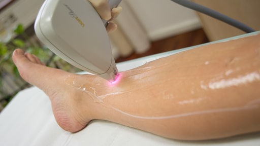 Eine Laserbehandlung an einem Bein